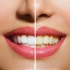 product - Tooth Whitening / Blanqueamiento Dental