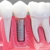 product - Dental Implants / Implantes Dentales
